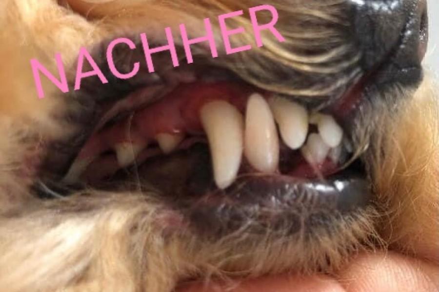 Ultraschall Zahnpflege (nachher)