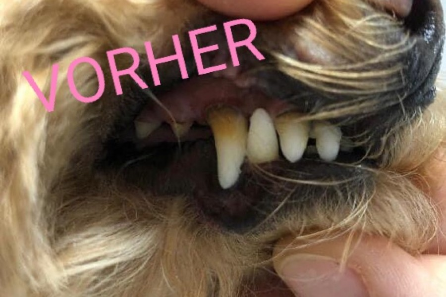Ultraschall Zahnpflege (vorher)